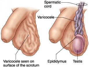 varicocele_surgery_1